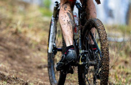רוכבי אופנים – מה לעשות במקרה של פציעה?